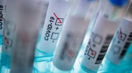 За добу на Запоріжжі зареєстрували понад1200 нових випадків коронавірусу