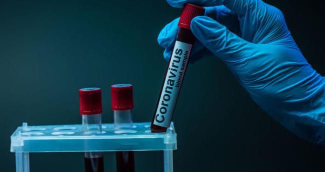 У Запорізькій області швидкими темпами збільшується кількість хворих на коронавірус
