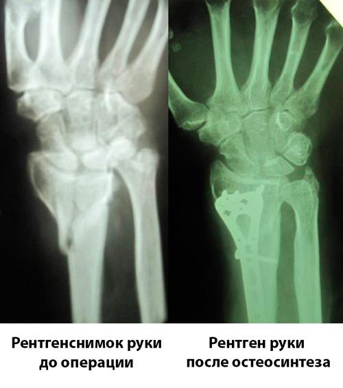 rentensnimok-do-i-posle-osteosinteza