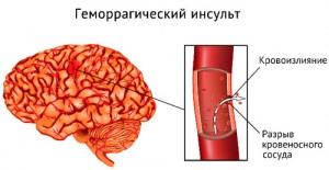 Геморрагический инсульт_схематическое изображение