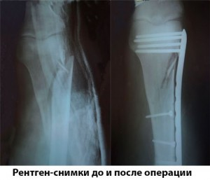 Рентген-снимки до и после операции
