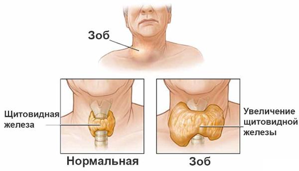 Всемирный день щитовидной железы