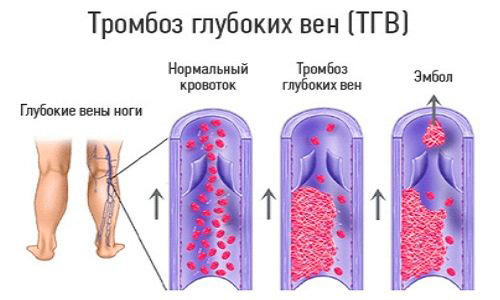 Тромбоз глубоких вен_схема