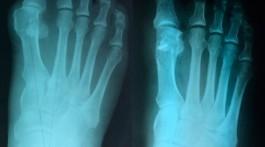 Вальгусная деформация стопы - рентген до и после операции