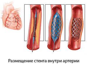 Фото 7_Стент внутри артерии -схема