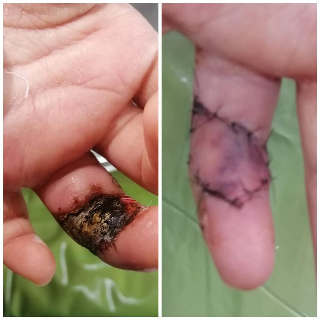 пальчик девочки после укуса гадюки